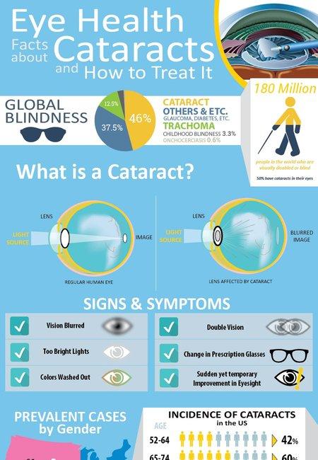 1024   cataracts 1